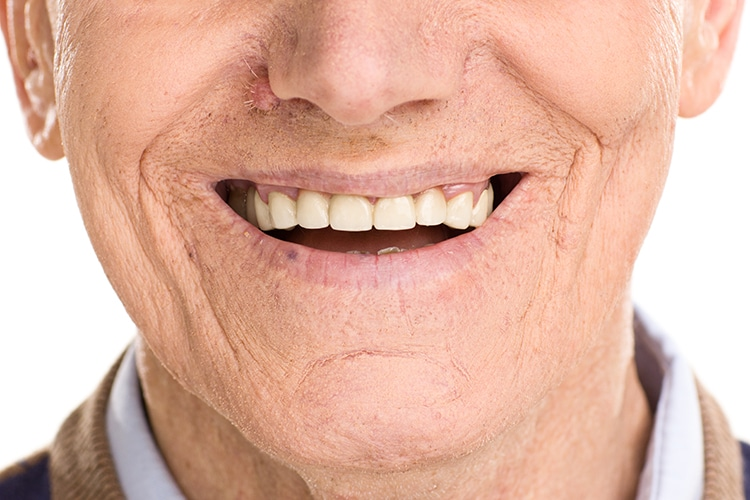 Opinion you dentures that look natural teeth think
